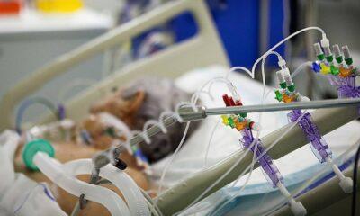 Respirador Artificial ECMO